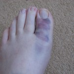 My foot, 24 hours after falling into the pond